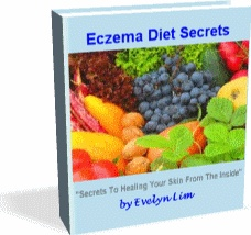 Ebook cover: Eczema Diet Secrets