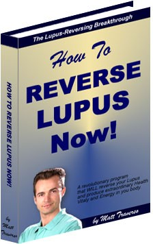 Ebook cover: How To Reverse Lupus Now!