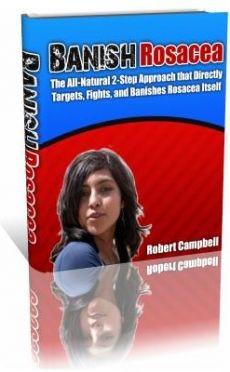 Ebook cover: Banish Rosacea