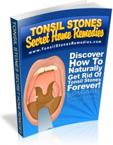 Ebook cover: Tonsil Stones Secret Home Remedies