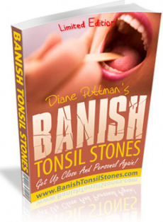 Ebook cover: Banish Tonsil Stones