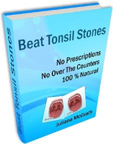 Ebook cover: Beat Tonsil Stones