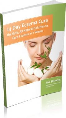 Ebook cover: 14 Days Eczema Cure