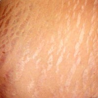 Ebook cover: How to Get Rid of Stretch Marks at Home in a Week
