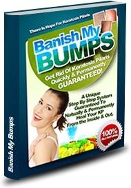 Ebook cover: Banish My Bumps