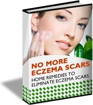 Ebook cover: No More Eczema Scars