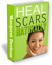 Ebook cover: Natural Solutions for Scars