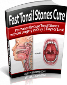 Ebook cover: How to Cure Tonsil Stones