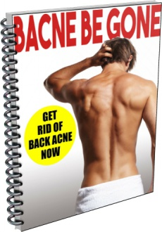 Ebook cover: Back Acne Be Gone